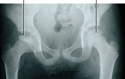 right Hip Perthes disease